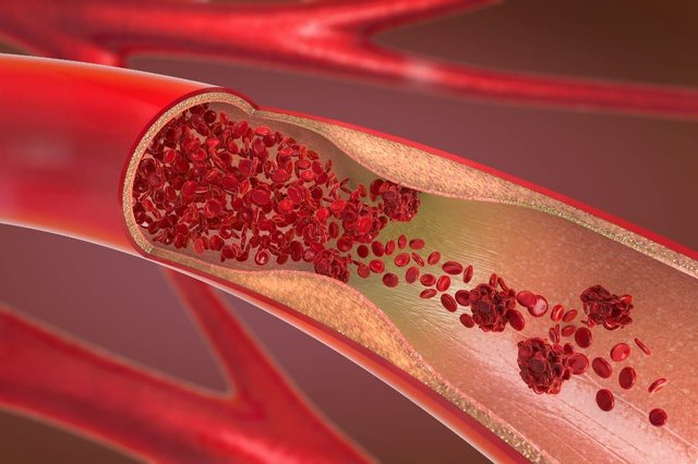 A buildup of plaque in your arteries ultimately makes your arteries much narrower and stiffer. (Shutterstock)