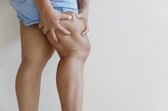 Throbbing or cramping pain, swelling, redness and warmth in a leg or arm is the main symptom of a blood clot (Photo: Shutterstock)