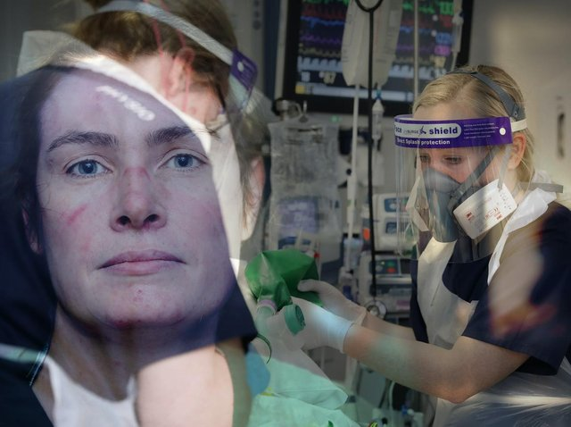 A Sister and a Charge Nurse working on RPH's Critical Care Unit. Marks under the eyes show where the PPE has been worn.